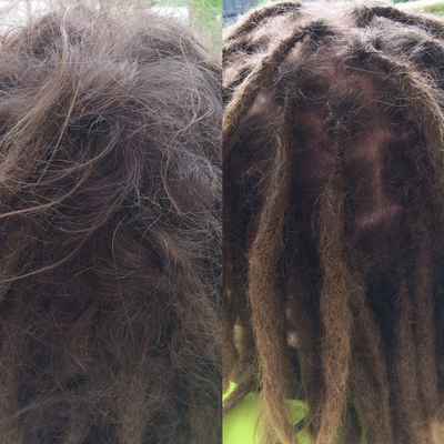 fix dreadlocks brisbane
