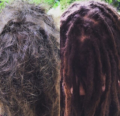 healthy dreads